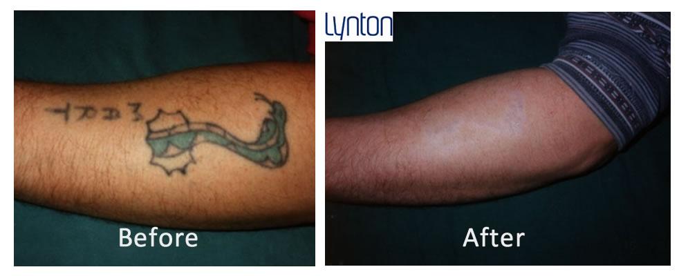100 Laser Tattoo Removal Machine Hire Tattoo
