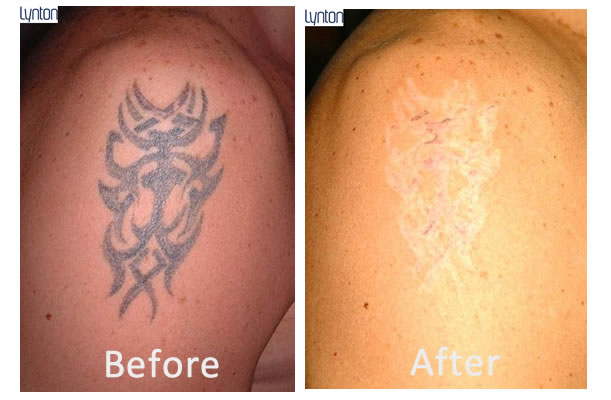 Laser tattoo removal blackpool the fylde clinic for Best tattoo removal laser